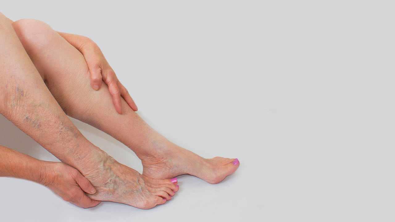 Leg & Facial Veins