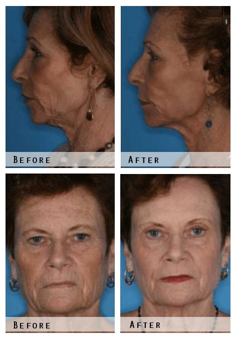 Laser Skin Resurfacing Before & After