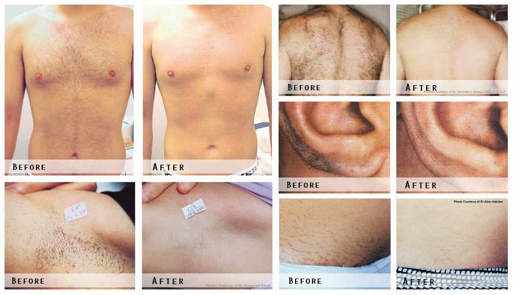 Hair Removal Before & After