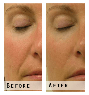 Hydra Facial Before & After