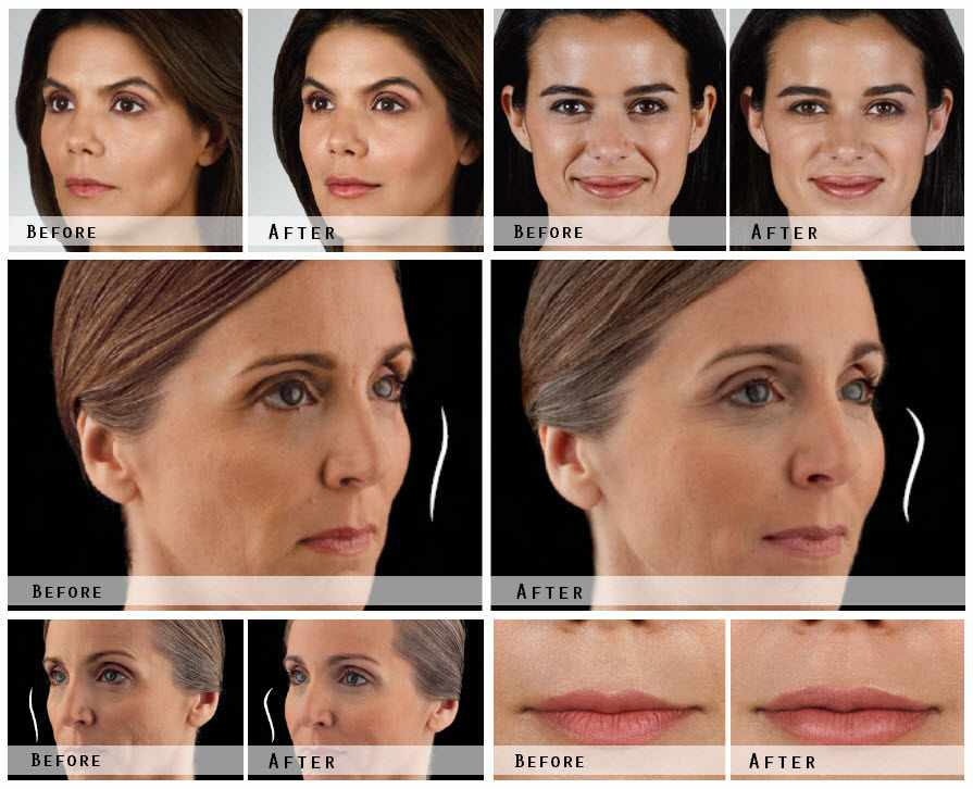 Juvederm Filler Before & After