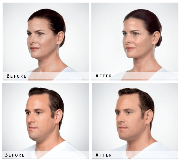 Kybella Treatment Before & After