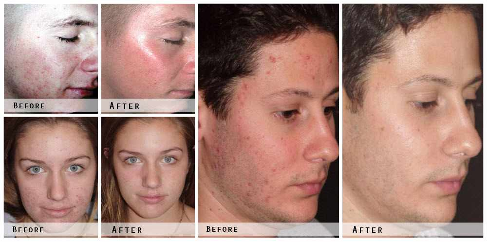 Laser Acne Treatment Before & After