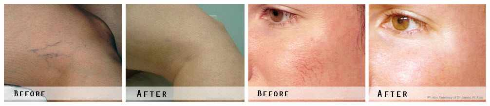 Laser Vein Therapy Before & After