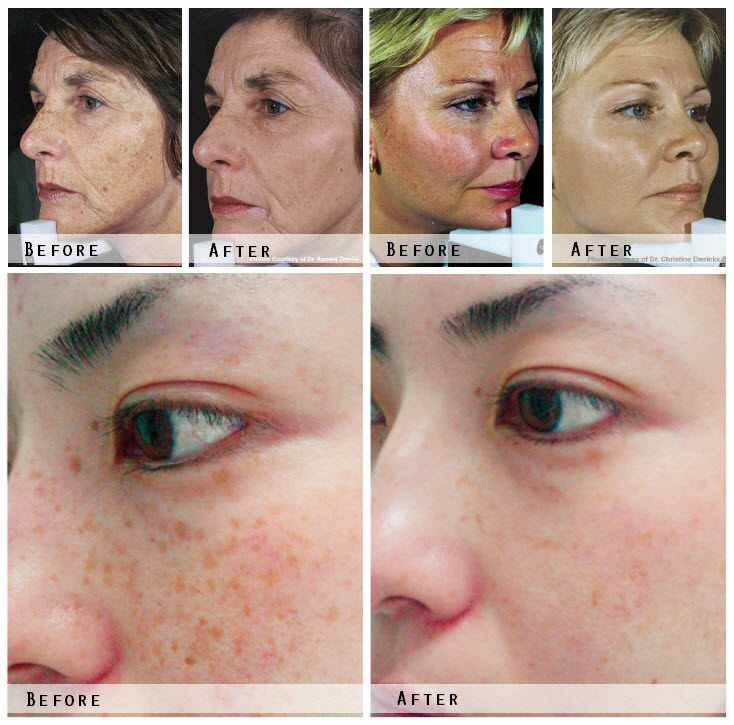 Laser Skin Rejuvenation Before & After