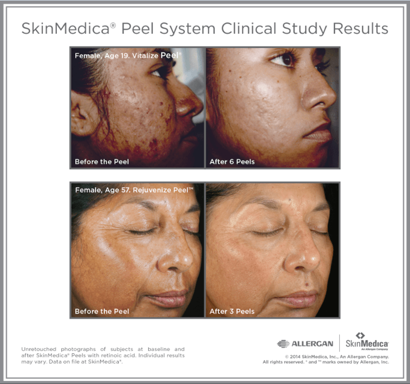 SkinMedica Peel System Clinical Study Results